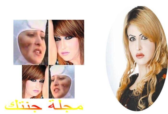سونيا العلي و شكلها عقب عملية التجميل